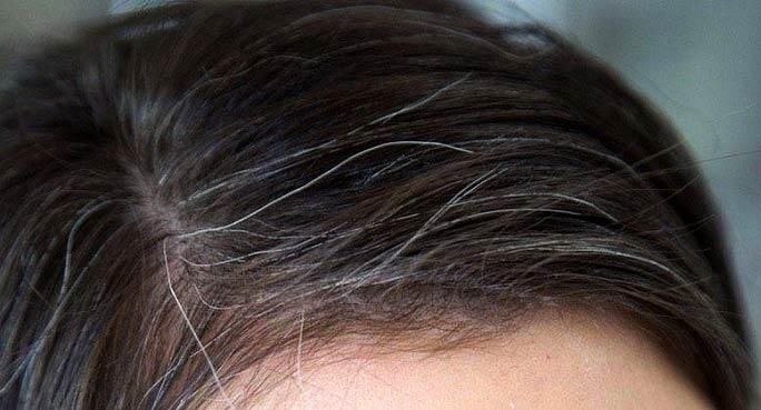 جلوگیری از ریزش مو و رفع سفیدی مو